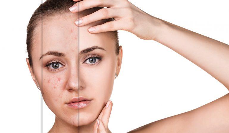 Akne mit Laser heilen. Warum ist Laserbehandlung gegen Akne so wirksam?