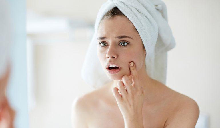 Akne – Symptome und Heilung. Kann die Akne ein für alle Mal bewältigt werden?