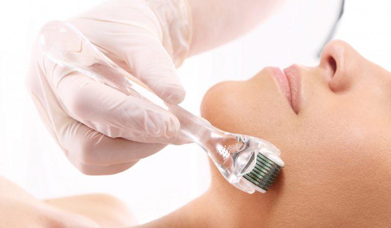 Methode gegen Falten und Narben. Worin besteht die Therapie mit dem Dermaroller?