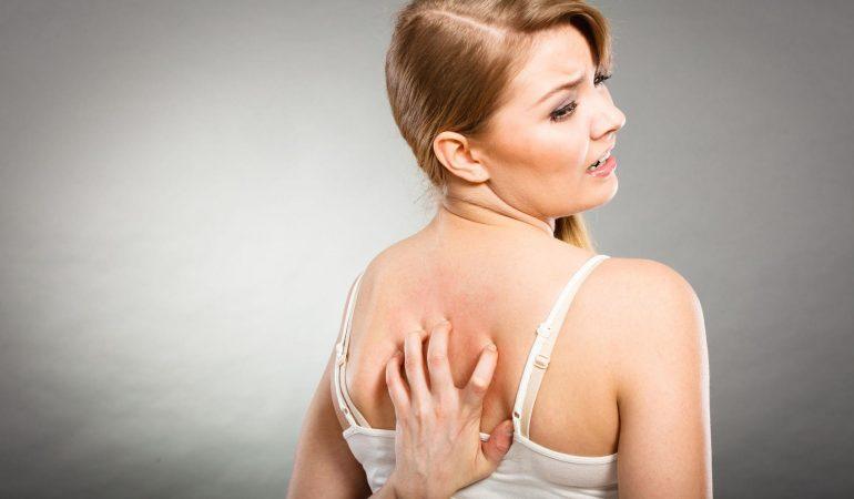 Wie wird allergische Haut gepflegt? Allergische Haut und andere Hauttypen