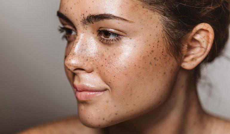 Fettige Haut: Woran erkennen Sie sie? Wie sollten Sie einen solchen Hauttyp pflegen?
