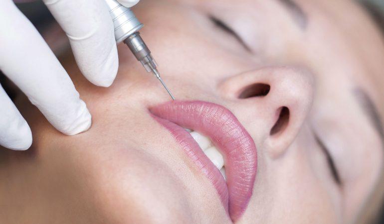 Permanent-Make-up für Lippen – was ist das und welche Effekte sichert eine solche Behandlung?